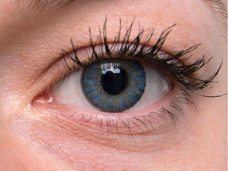 """""""Blue"""" bei einer grauen Augenfarbe"""