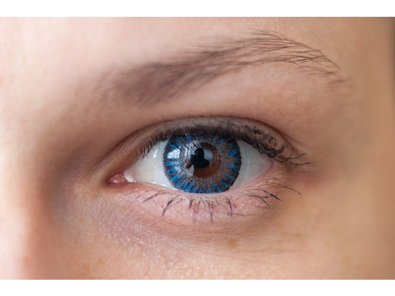 """""""Blue"""" bei einer braunen Augenfarbe"""